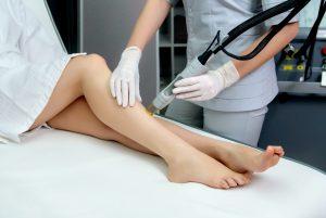 edmonton laser hair removal