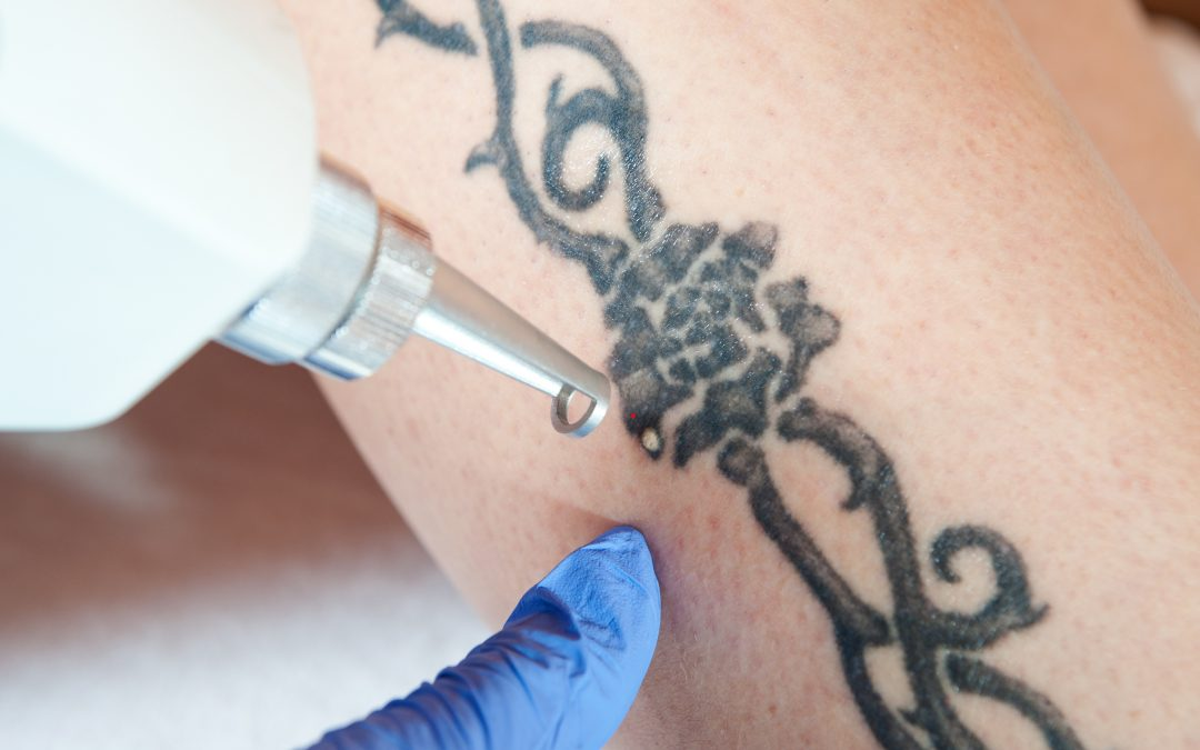 """Tattoo Regret"" And Everything You Need To Know About Laser Tattoo Removal"