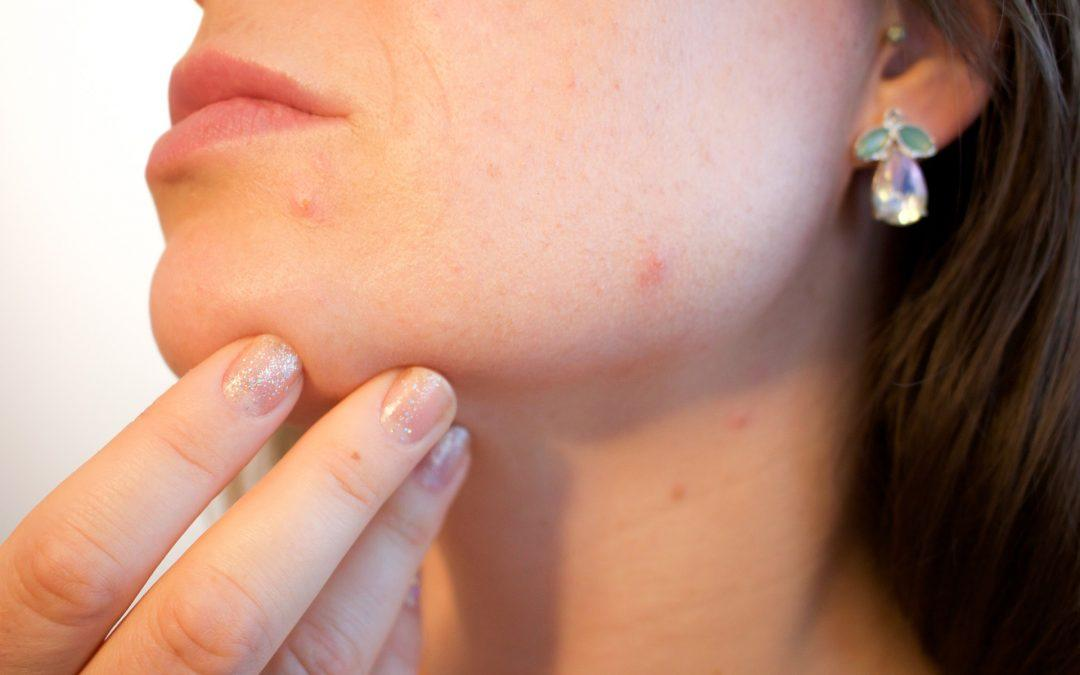 The Ins And Outs Of Adult Acne And How To Fight It